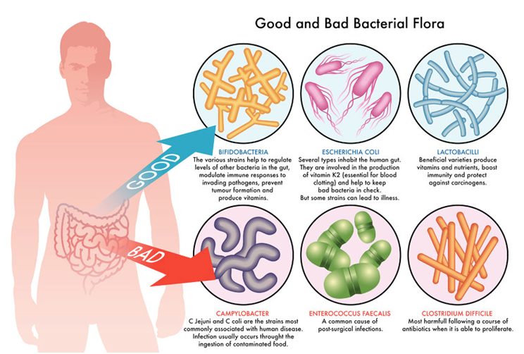 Probiotics With the Foods Improves Bowel Movement in Chronic Constipation Patients